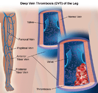 Illustration of deep vein thrombosis of the leg