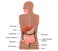 Illustration demonstrating a colonoscopy, part 1