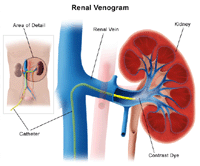 Illustration of renal venogram procedure