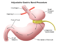 Illustration of a restrictive surgical procedure for weight loss
