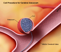 Illustration of coil procedure for cerebral aneurysm