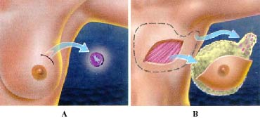 mastectomy surgical removal of one or Learn about the different types of breast cancer surgery, including lumpectomy, mastectomy, lymph node removal, and reconstruction.
