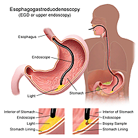 Illustration of an esophagogastroduodenoscopy procedure