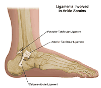 Illustration demonstrating the three ligaments involved in ankle sprains/strains
