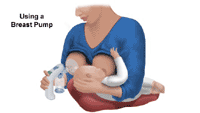 Illustration demonstrating the use of a breast pump