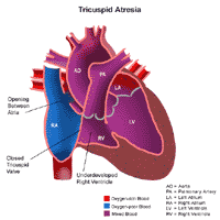 Anatomy of a heart with tricuspid atresia