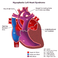 Anatomy of a heart with hypoplastic left heart syndrome