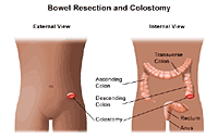 Illustration of bowel resection and colostomy