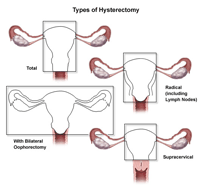 Illustration of the different types of hysterectomy